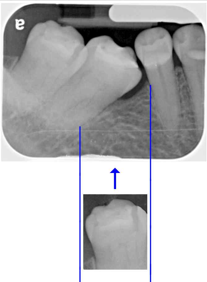 example_x-ray_fit_tooth.jpg