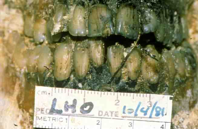 teeth_front_view.jpg